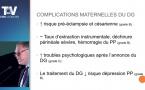 17:15 Jean-Marc COMAS (Brive)